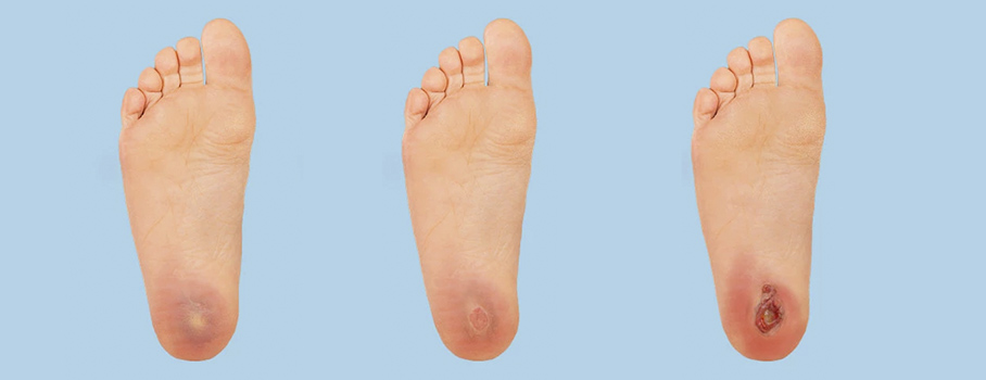 10 Simple Tips For Diabetic Foot Care Mepinetwork